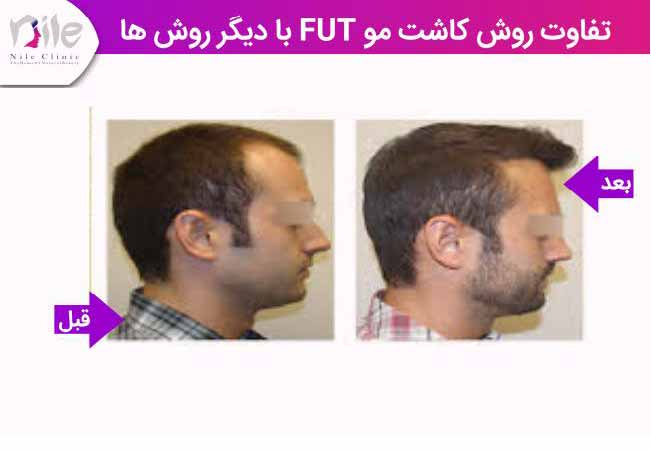 کاشت مو به روش FUTو تفاوت با سایر روش ها