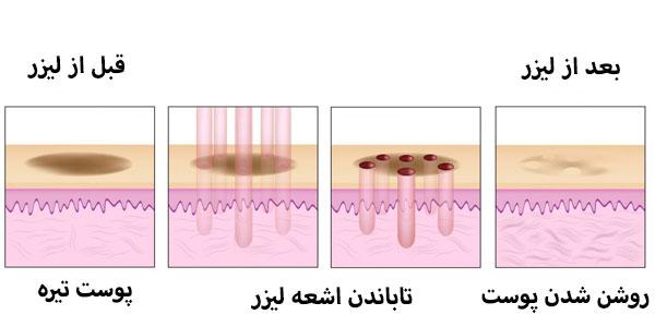 مراحل روشن کردن پوست