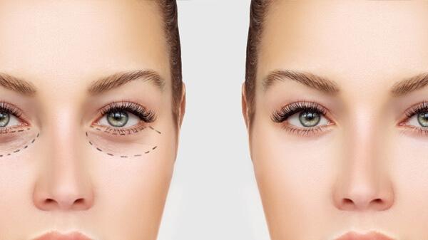 مراقبت قبل و بعد جراحی پلک بالا و افتادگی پلک