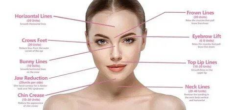 تزریق ژل به لب و زیبایی صورت