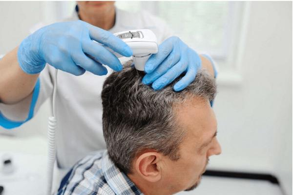 معایب و عوارض کاشت مو به روش میکروگرافت