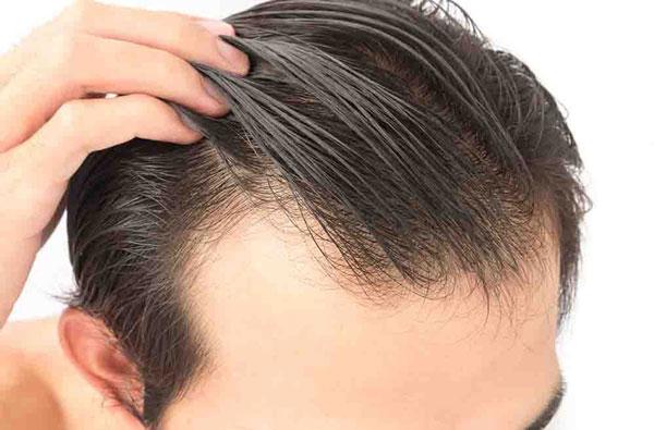 چگونگی روش کاشت مو میکروگرافت