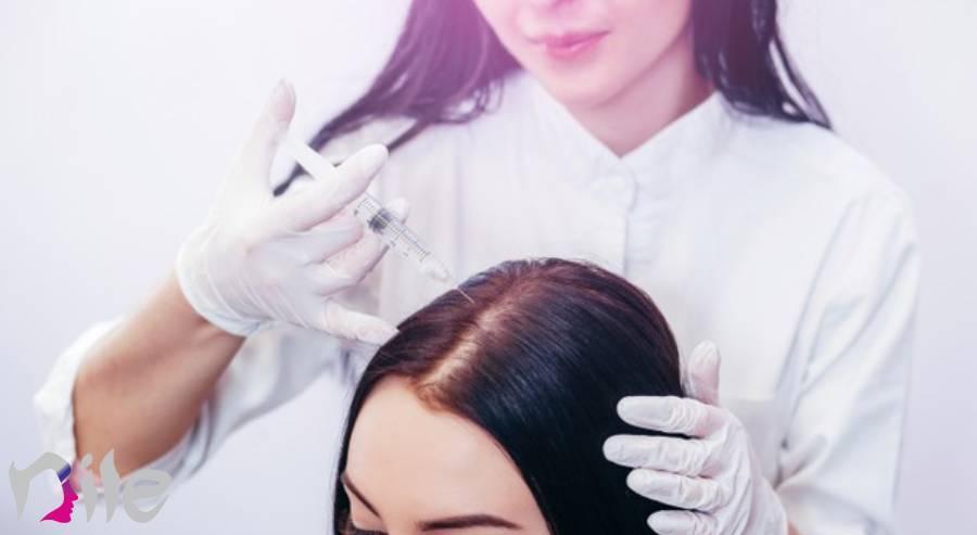 ریزش مو بعد از کاشت