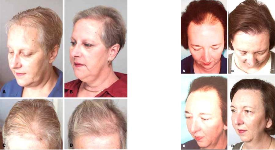 الگوهای ریزش مو در زنان