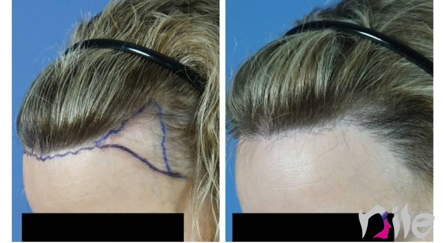بررسی های اولیه برای کاشت مو در زنان
