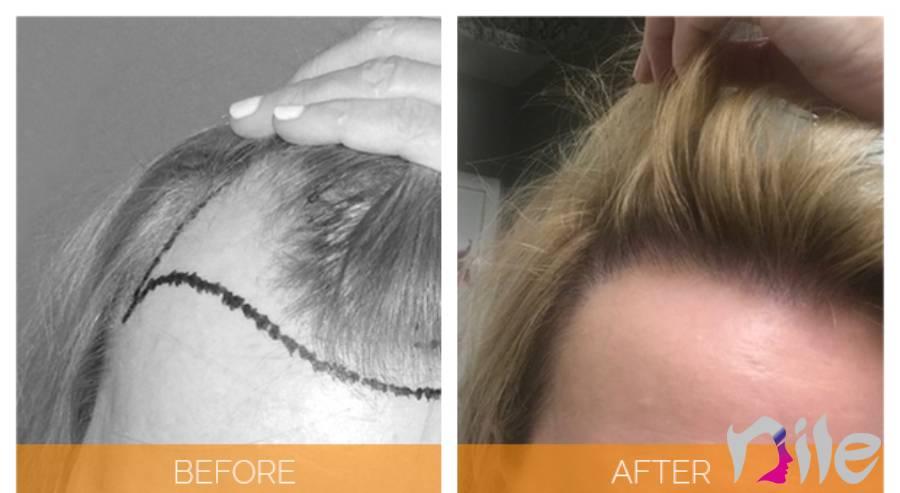 نکات مهم در خصوص روز بعد از کاشت مو زنان