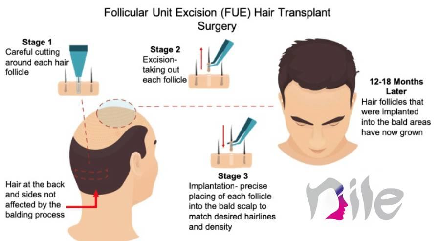 کاشت مو به روش FUE و نکاتی که باید به آن توجه داشته باشید.