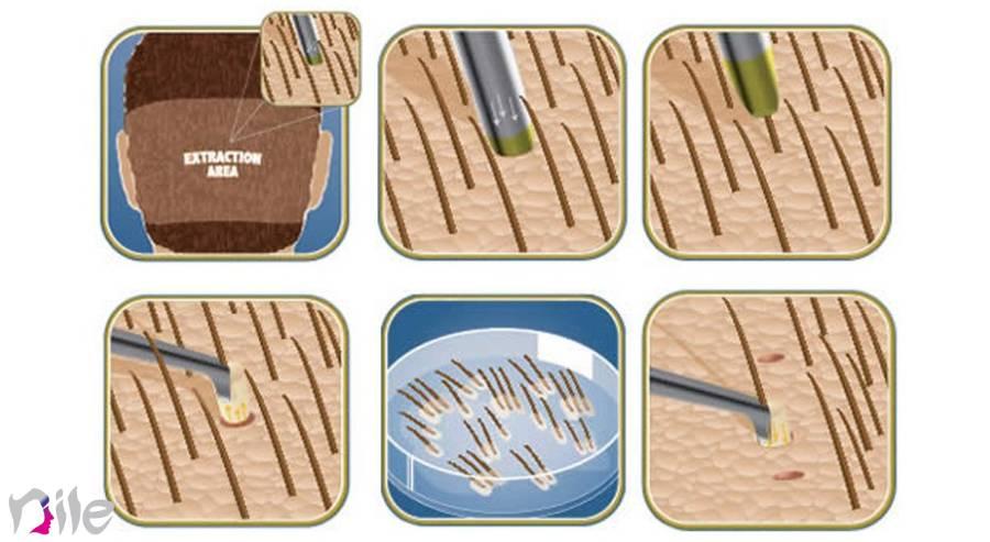 چگونگی کاشت مو به روش FUE