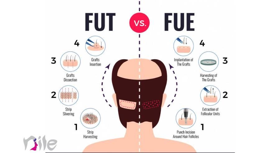 تفاوت کاشت مو به روش super fue و sut
