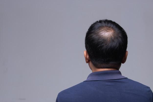 برای جلوگیری از ریزش مو بهترین راهکار چیست؟