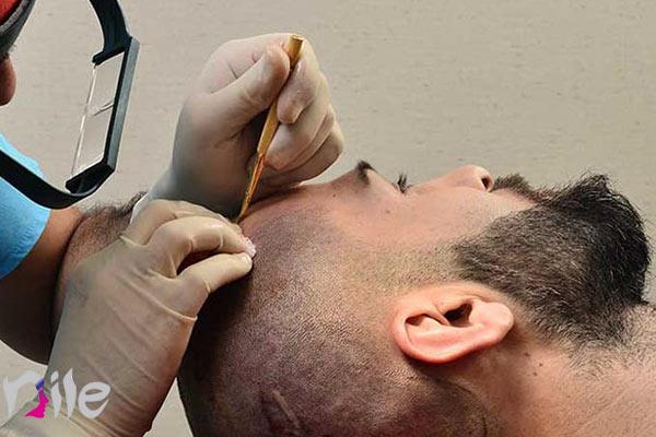 طریقه جلوگیری از ایجاد عفونت بعد کاشتن مو
