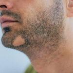 علل ریزش موی صورت یا ریش و راههای درمان