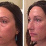 علل قرمزی و درمان ورم صورت بعد از تزریق چربی