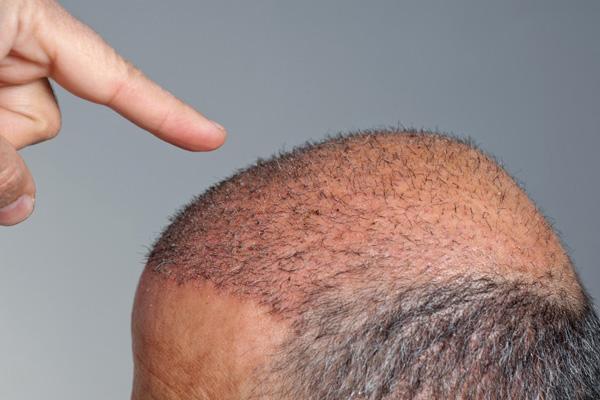 اهمیت خوابیدن در حالت مناسب بعد از کاشت مو