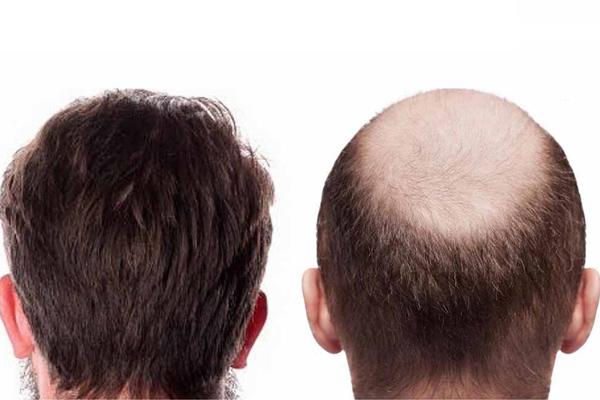 تاثیر قرمز شدن پوست سر روی پیوند مو