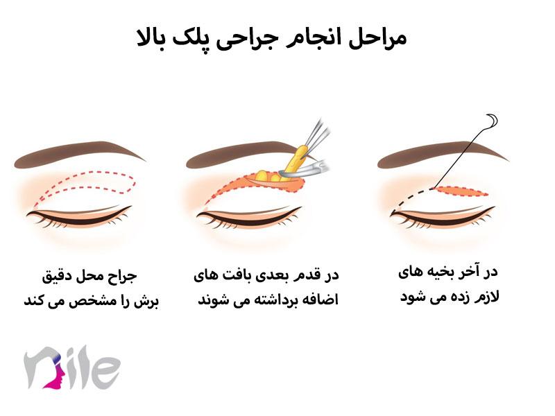 مراحل بلفاروپلاستی