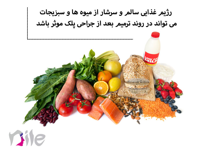 رژیم غذایی بعد از بلفاروپلاستی
