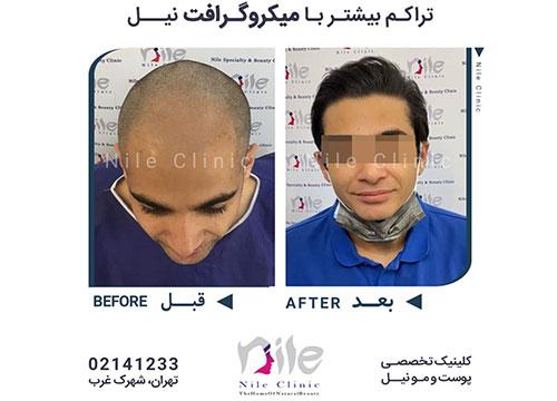 عکس قبل و بعد از کاشت مو
